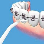 Oralni Tuš Za Blistavo Čiste Zube Power Floss 2