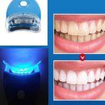 Aparat I Gel Za Izbeljivanje Zuba White light 2