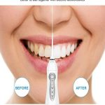 Tuš Za Blistavo Čiste Zube Električni